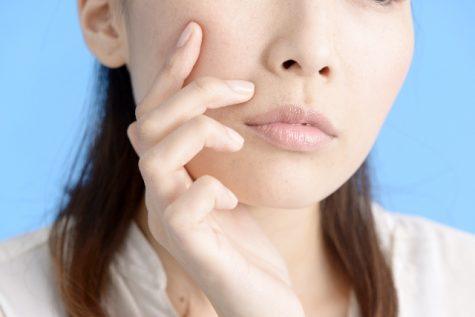 ニキビ 市販薬 皮膚科