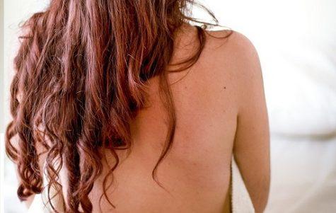 背中ニキビ 皮膚科